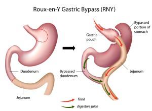 Situatie voor en na een Gastric Bypass operatie